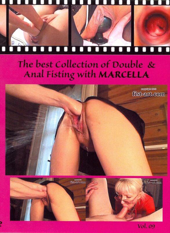 Fisting Pornofilme
